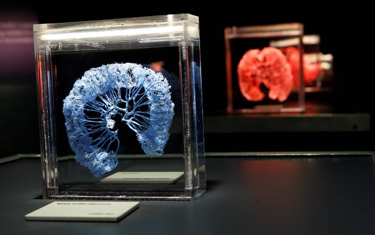 """A gallery of circulatory displays is shown at """"Bodies ... The Exhibition"""" at Luxor. (Premier Ex ..."""